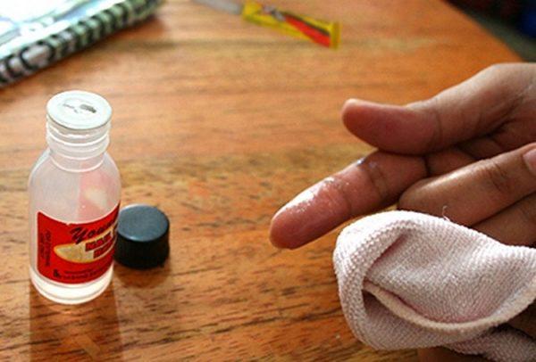 Попавший на руки цианакрилат нужно смыть ацетоном